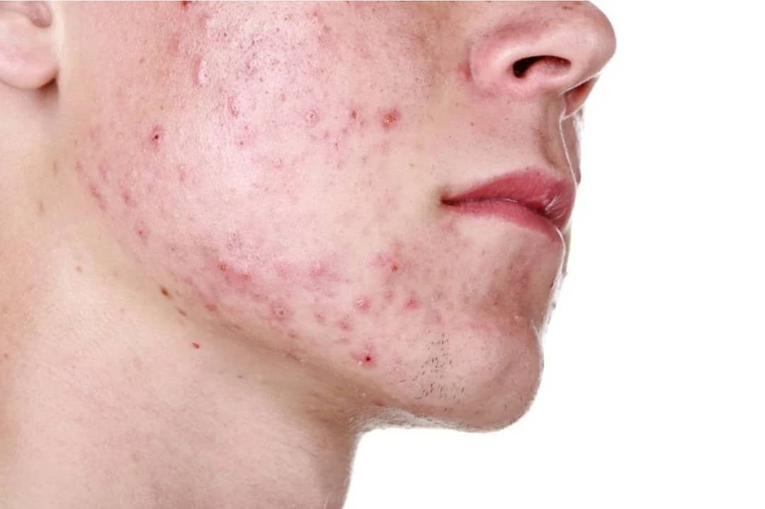 mejor-crema-anti-acne