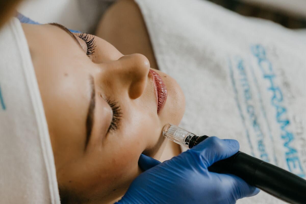 La-depilacion-laser-es-definitiva